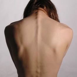 על יוגה וכאבי גב